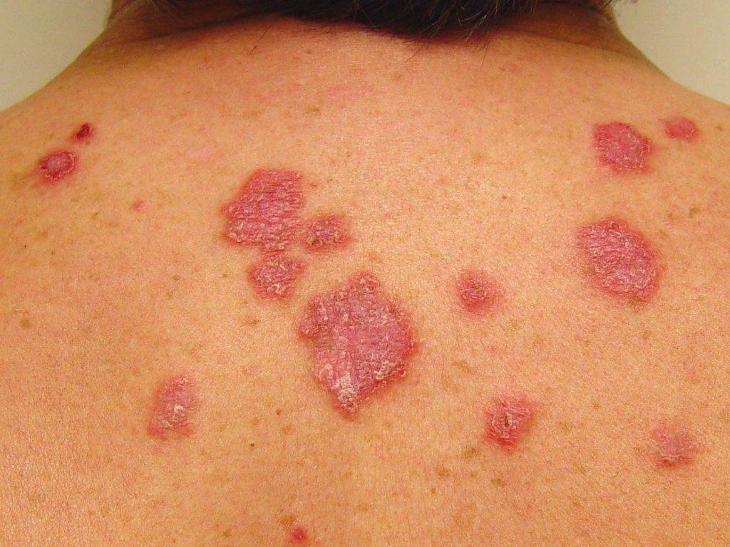 A Sociedade Brasileira de Dermatologia (SBD) vem a público esclarecer notícias de interesse em saúde pública: câncer da pele, proteção solar e vitamina D.